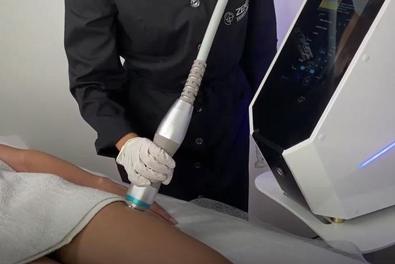 Как работает ударно-волновая терапия?